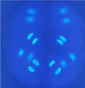 picture of urchin chromosomes